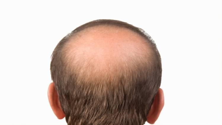 Das Mangan für den Haarausfall auf