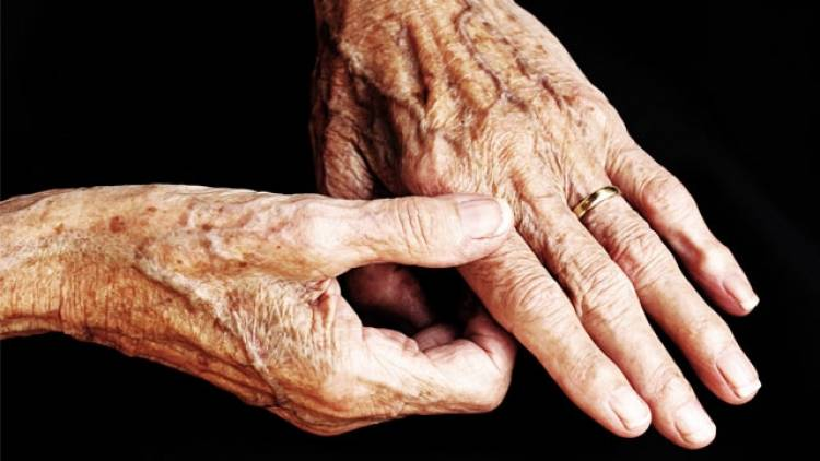 Richtige Ernährung bei Arthrose in Finger und Hand.